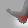 足の裏の痛みでお悩みの方は盛岡整骨院へ!